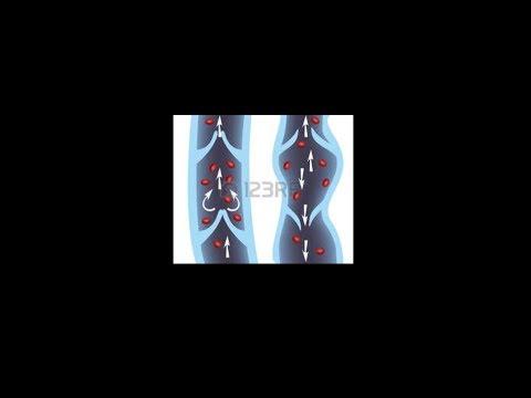 Die Einordnung warikosnoj die Krankheiten der unteren Gliedmaßen