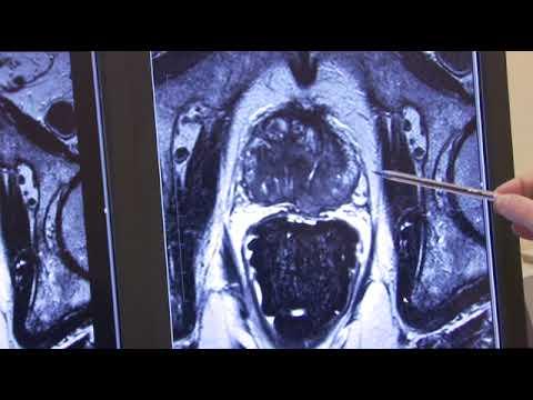 Nadel Infusion von Prostatitis