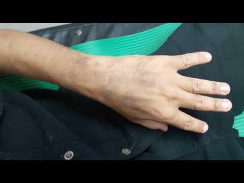 La temperatura di eczema umida diventante