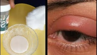 How To Get Rid Of Puffy Eyes,Swollen Eyelids With Baking Soda