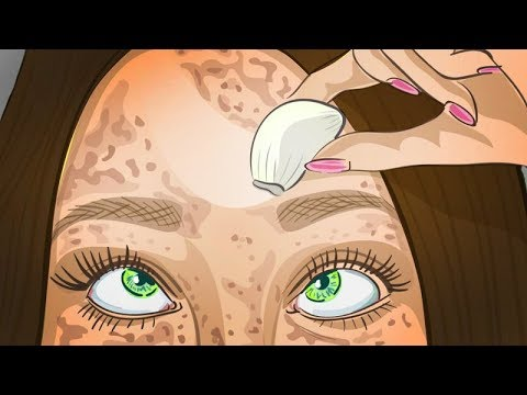 Как убирать с лица веснушки