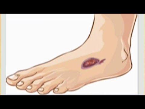 Impfen Tank Prostata Saft Empfindlichkeit