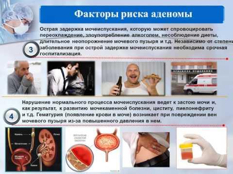 Предстательная железа средней эхогенности