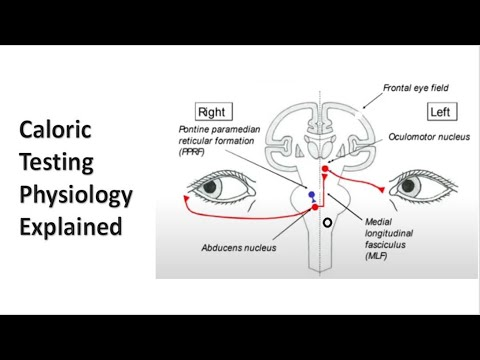 Pierderea clarității vederii