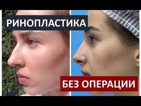 Гепатит снять воспаление
