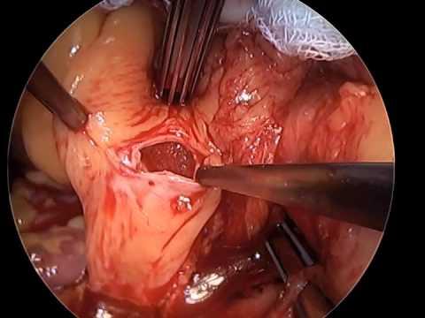 Cardiac Tumor Removal