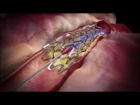 Инфаркт миокарда: Стентирование