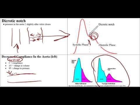 Warum Blutdruck ist auf der linken und der rechten Hand bei unterschiedlichen Drücken