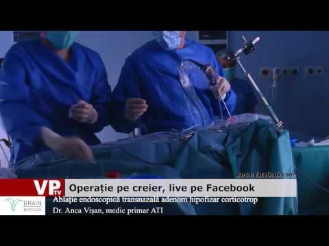 Operație pe creier, live pe Facebook