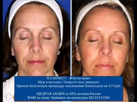 Как справится с пигментными пятнами на лице