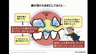 こんなにある! 入れ歯を使わないことの悪影響