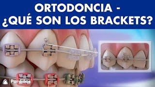 Ortodoncia - Partes y función del aparato dental ©