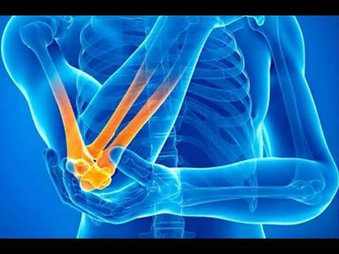 Trattamento di flessione contrattura dellarticolazione del ginocchio