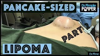 Part 2: A Pancake-Sized Lipoma on the Back with Dr Pimple Popper