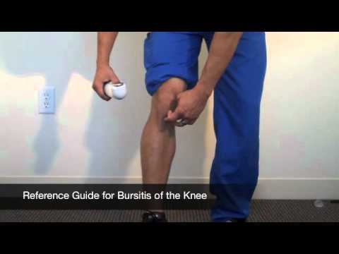Video How to Treat Knee Bursitis
