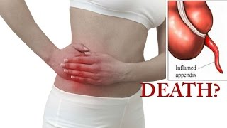 Why Appendix is useless but can kill you ? What Does the Appendix Do?