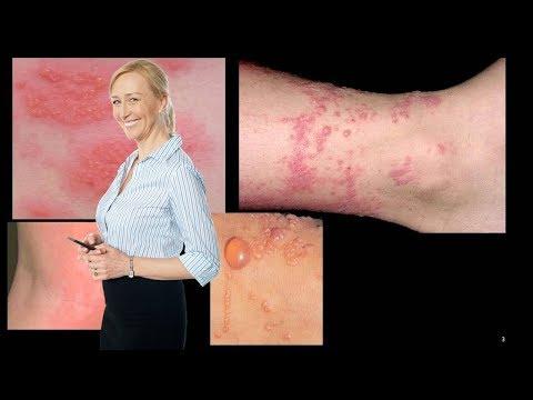 Atopichesky la dermatitis y vitiligo