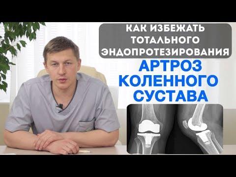 Артроз коленного сустава - частичное эндопротезирование коленного сустава (одномыщелковое)