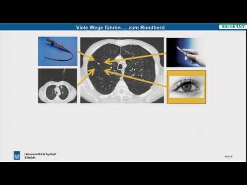 Prostatakrebsbehandlung Gifte