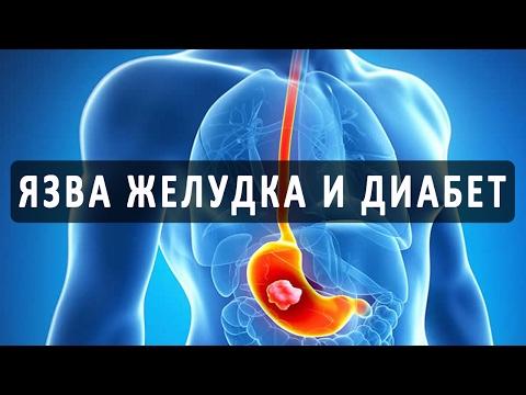 Профилактика при диабете 2 типа