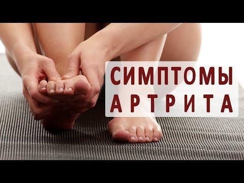 По каким симптомам определяется артрит суставов?