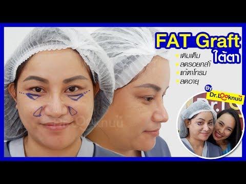วิธี lechity pigmentatsiyu ใบหน้า