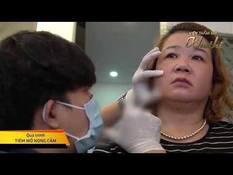 #ENZYME_HỦY_MỠ_THÔNG_MINH- Chỉ #1_lần trị liệu