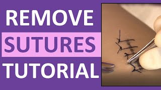 Suture Removal Nursing Skill | How to Remove Surgical Sutures (Stitches)