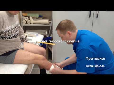 видеоотчет по изготовлению модульного протеза нижней конечности при ампутации голени