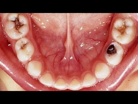 Video Kill Tooth Pain Nerve In 3 Seconds Permanently With This Tooth ache remedy