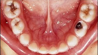 Kill Tooth Pain Nerve In 3 Seconds Permanently Tooth ache remedy | HOW TO GET RID OF A TOOTHACHE