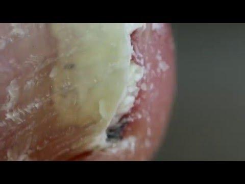 Los tratamientos de los cabello de la piel y las uñas