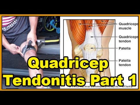 Video Quadricep Tendonitis and my Anecdotal solutions to knee pain