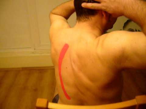 Zwiotczenie mięśni brzucha