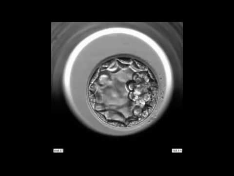 Fonalféreg fertozes tünetei