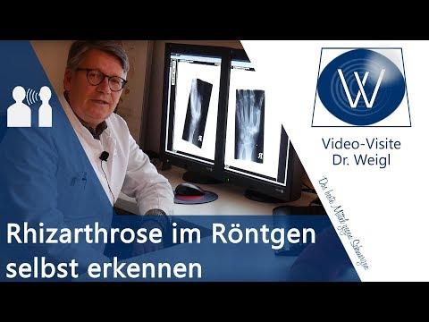 Training mit einem Stock von Osteochondrose Video