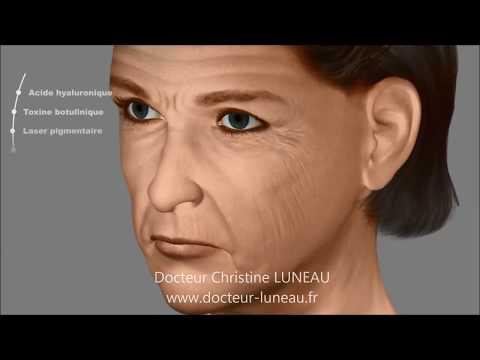 Quaccepter au vieillissement de la peau de la personne