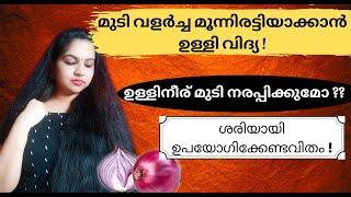 Onion Technique For Triple Hair Growth / Hair Regrowth / Prevent Hair Fall & Dandruff