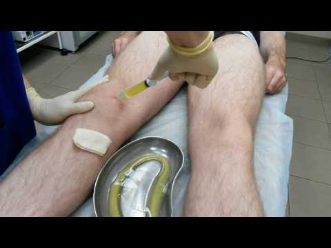 Шейный остеохондроз лечение лечебная физкультура