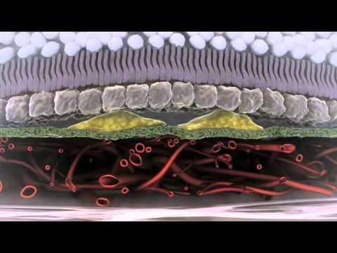La chirurgie vasculeuse sur les opticiens
