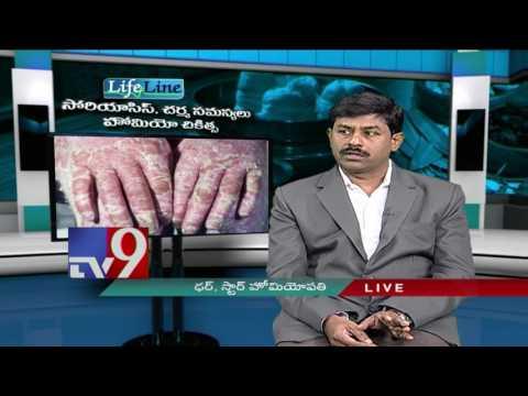 Atopitchesky la dermatite les signes le traitement