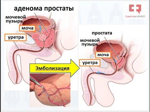 Абактериальный простатит хронический