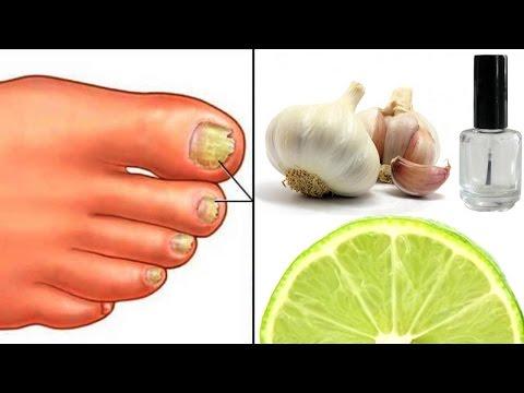 Plastyri del hongo de las uñas