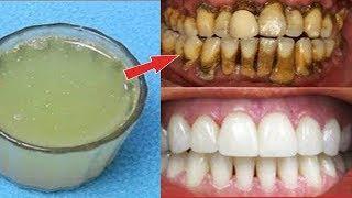 2 Dakika İçinde Evde Dişleri Beyazlatın Çözüm - Sarı Dişler İnci Gibi Nasıl Beyaz Olur ? - Diş Bakım