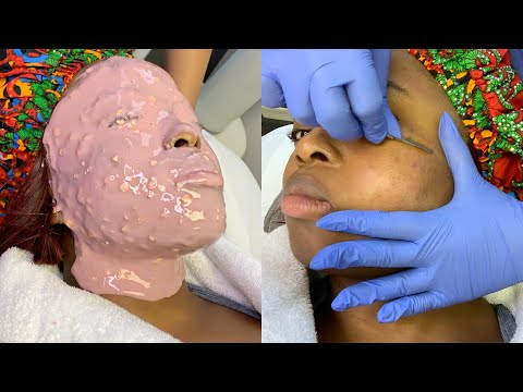 MY 1st EVER COSMETIC FACIALS EXPERIENCE || Dermaplaning, Enzyme peel etc