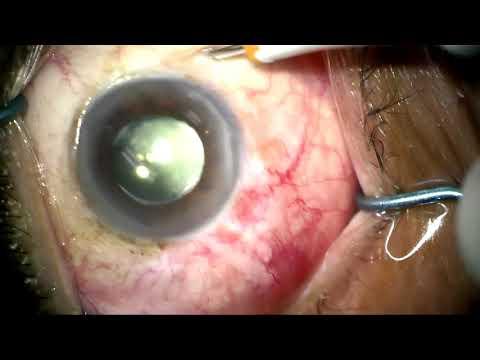 Metode de diagnostic a acuității vizuale