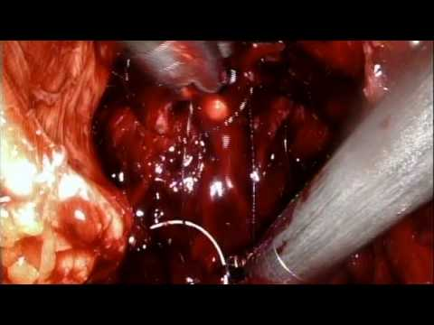 RS-RARP part 8 Urethrovesical Anastomosis