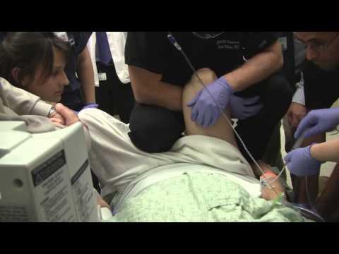 Magnetfeldtherapie bei Arthrose des Schultergelenkes