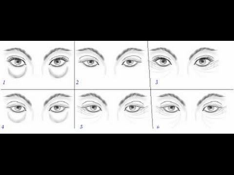 Pourquoi sous les yeux les cercles bleus chez les femmes de la raison