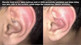 OMG! Big blackhead Pimple Spot Popping On Ear - Самые лучшие